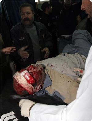 datafiles_cache_tempimgs_2009_1_images_news_2009_01_27_gaza-casualty_300_0