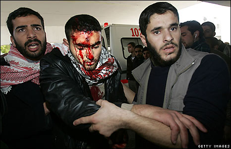 gaza-hospital-over-3000-casualties
