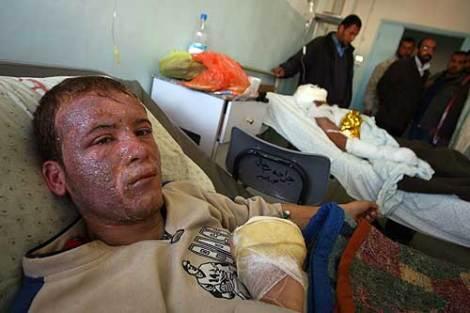 injured-man-afp