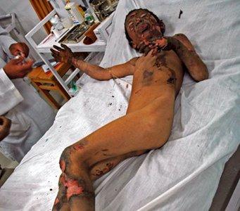 Injured Child 2