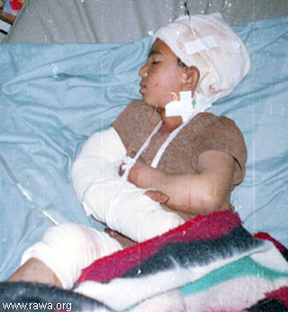 injured child 3