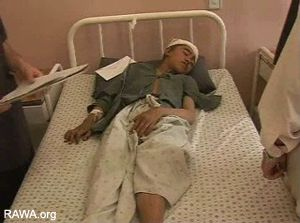 mohammed ullah is injured in panjwaye village by coalitions forcs